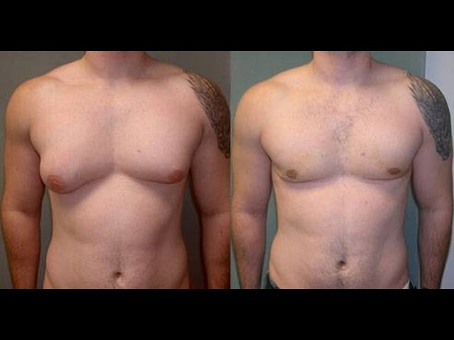 Lose Man Boobs Using These Natural Methods